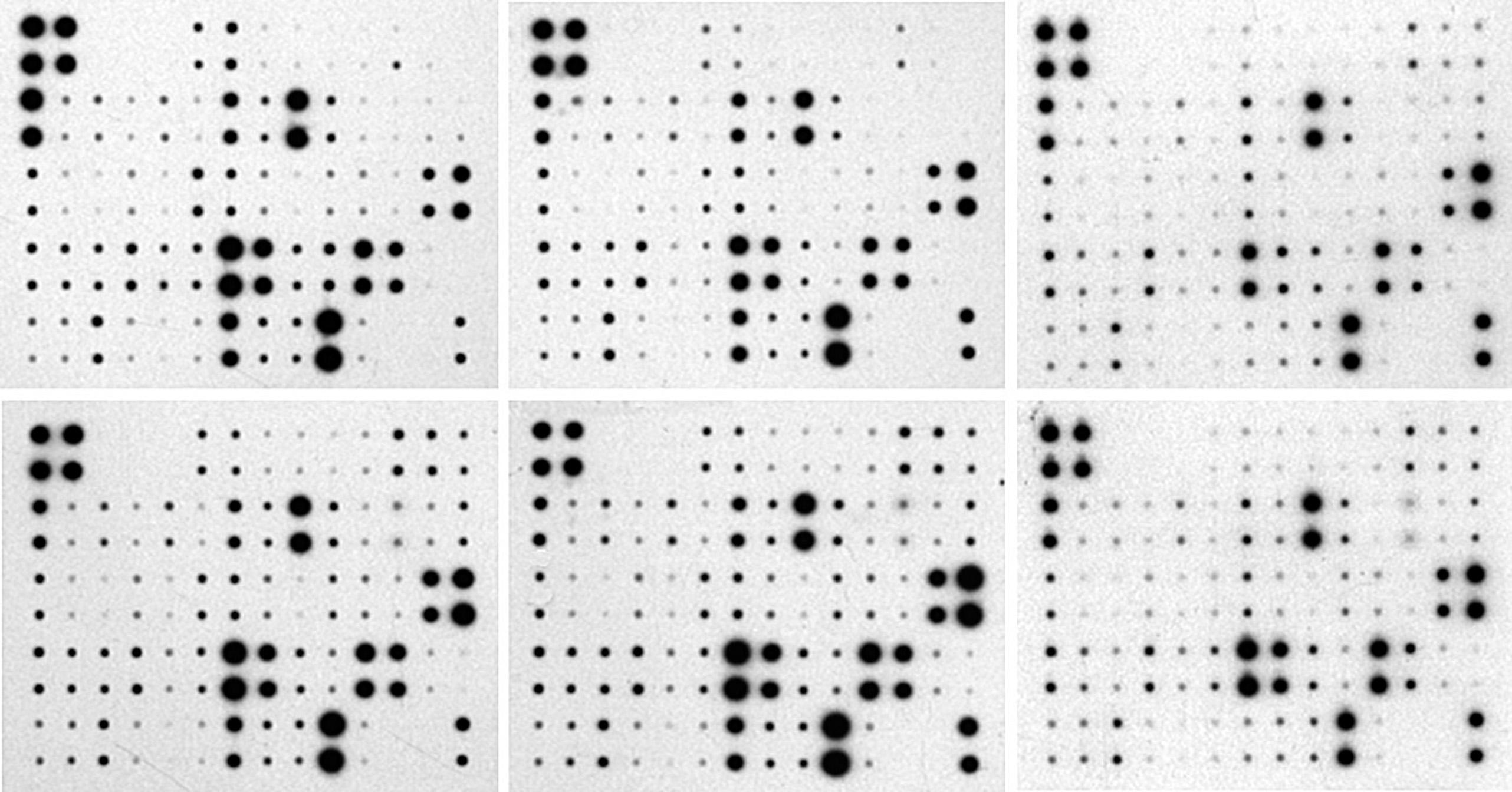 Angiogenesis Analyzer for ImageJ - Gilles Carpentier